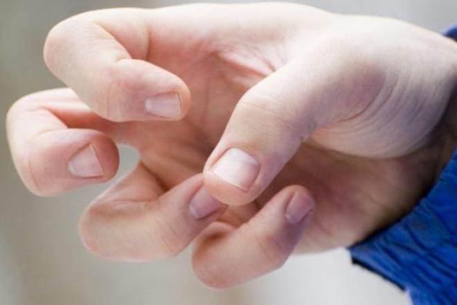 Doenças Psiquiátricas causadas pela Maconha